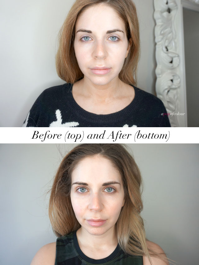 Before and after using the Silk'n Titan anti-aging device for tightening and lifting