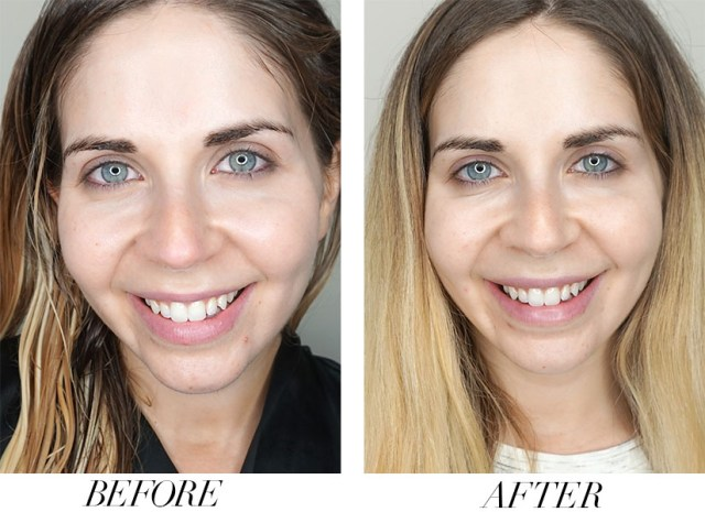 Before and after with Botox for Crow's Feet