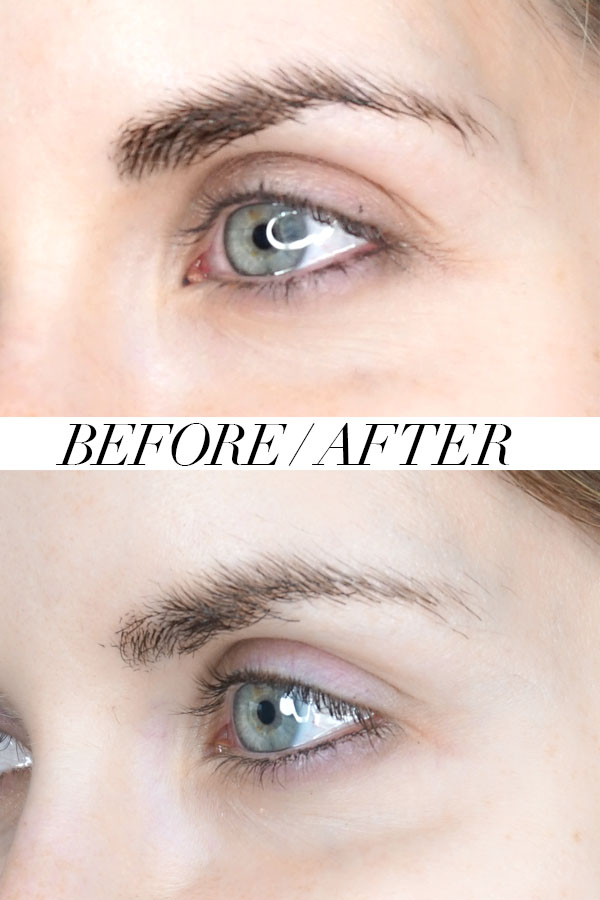 Before and after with Botox for crow's feet from Self Aesthetics