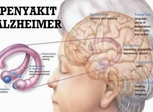 sebab gejala dan pengobatan penyakit alzheimer