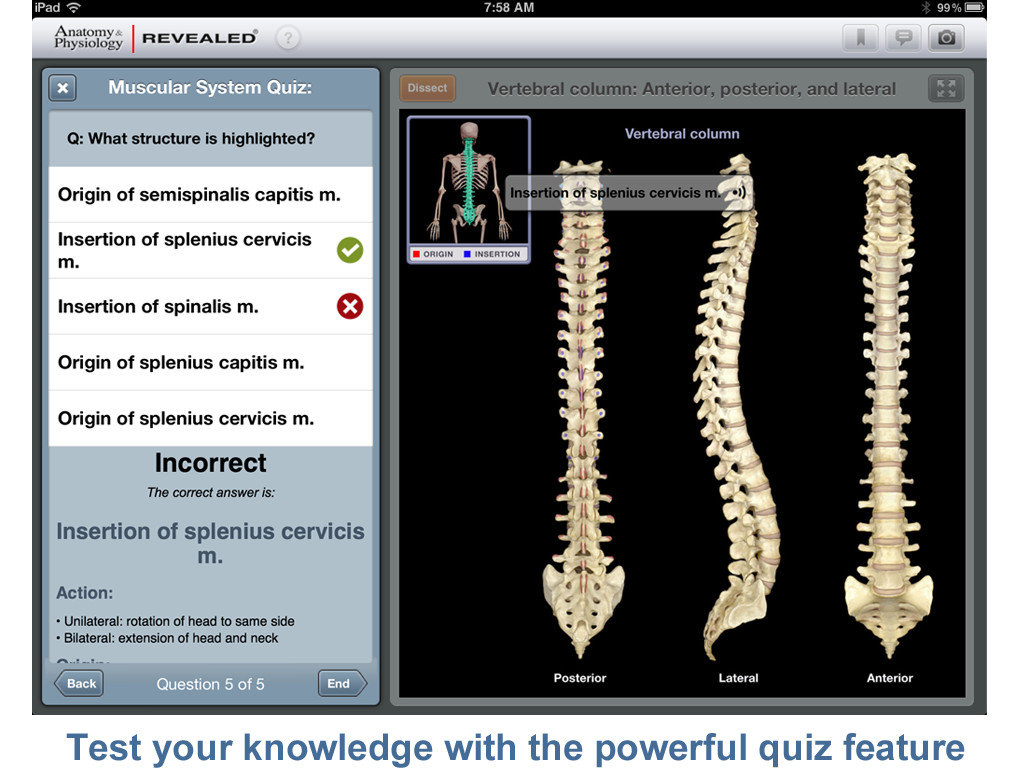 McGraw-Hill\'s Anatomy & Physiology REVEALED® Is Both An Attractive ...