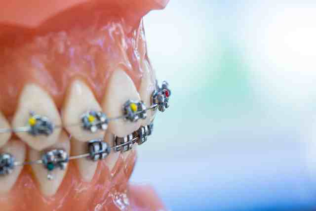 Image result for orthodontic treatment