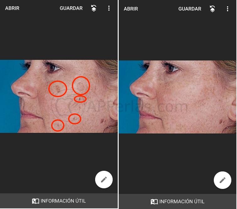 Cómo quitar manchas de la cara
