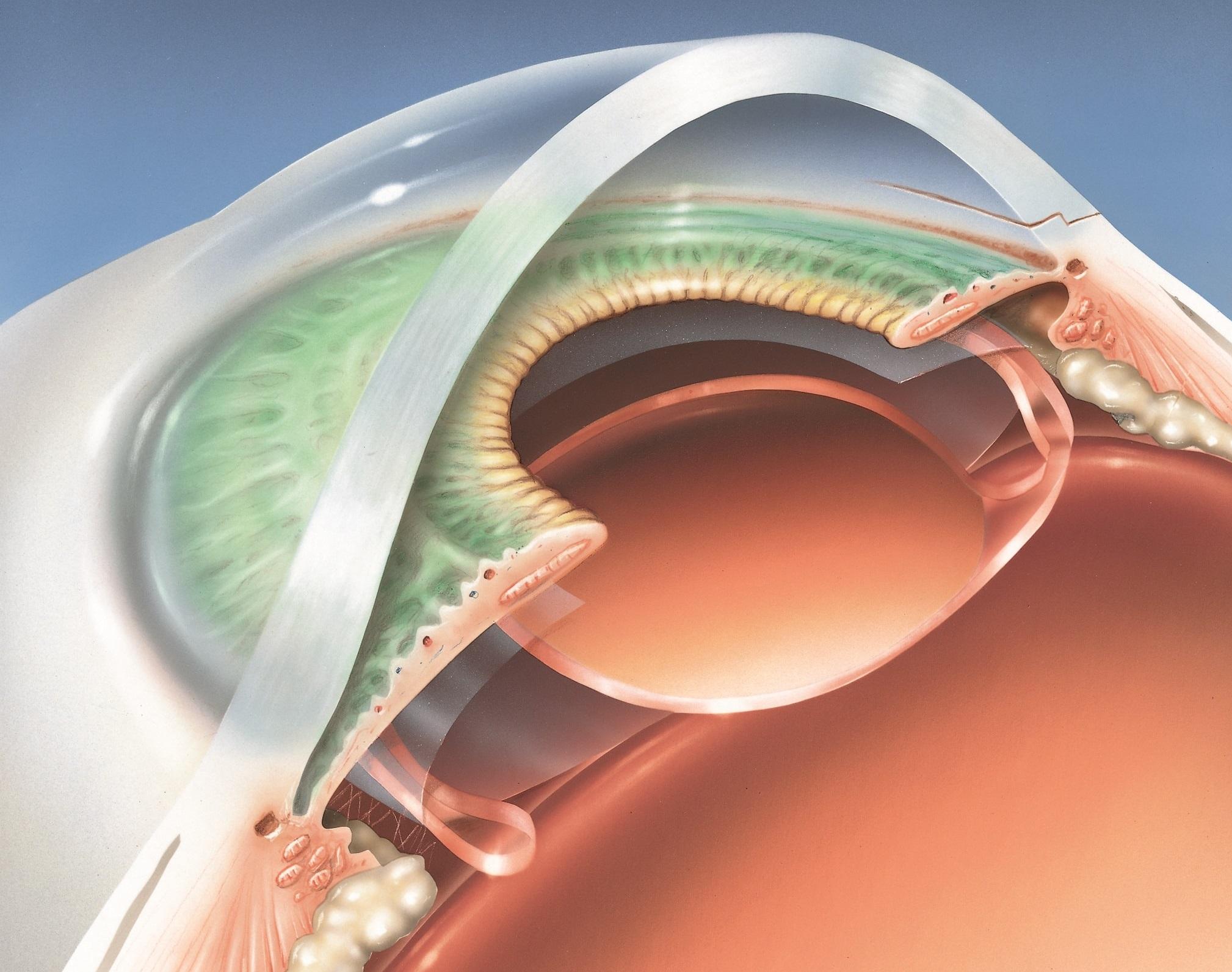 Cataract Surgery - Applecross Eye Clinic