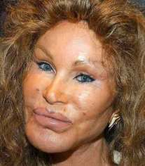 jocelyn-wildenstein-horror-plastic-surgery