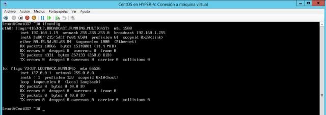 ifconfig centos hyper-v