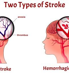 stroke [ 1764 x 981 Pixel ]