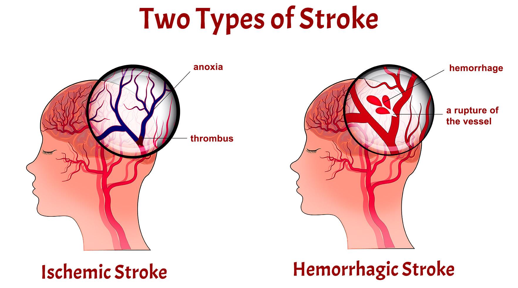 hight resolution of stroke