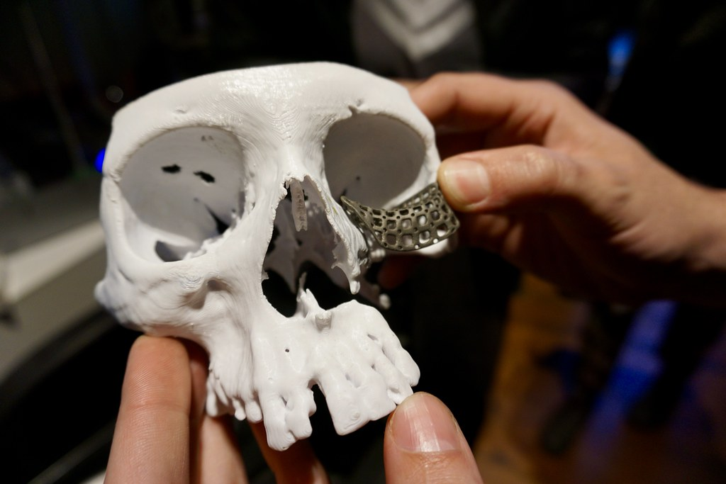 Implante elaborado en impresora 3D