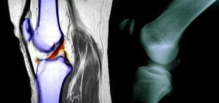 https www apotheken umschau de krankheiten symptome symptome knieschmerzen ueberblick 738267 mehrseiter 4 knieschmerzen diagnose html