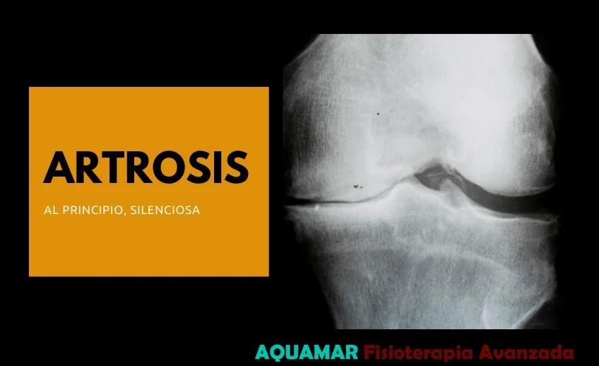 tratamiento artrosis la laguna