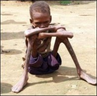 third-world-starvation