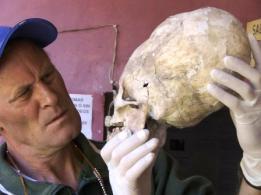 Brien-Foerster-Skull