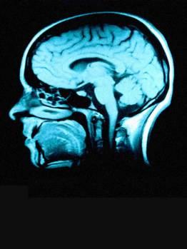 Ira S Pastor ~ brainimage