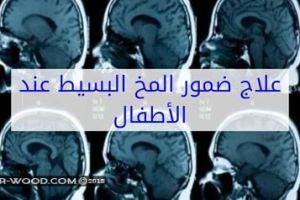 علاج ضمور المخ عند الاطفال بالاعشاب