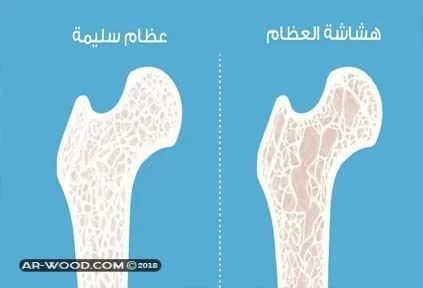 علاج هشاشة العظام للدكتور عبد الباسط