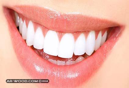بروز الاسنان قبل وبعد