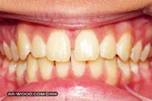 علاج بروز الفك العلوي بدون جراحة