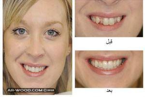 كيفية سد فراغات الاسنان بدون تقويم