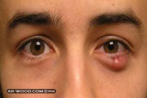 علاج الكيس الدهني في العين بالاعشاب