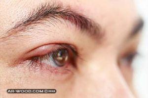 مابعد عملية ازالة الكيس الدهني من العين