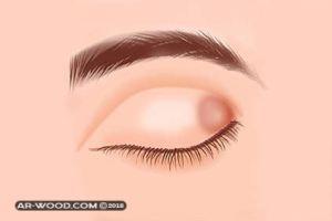 مرهم لعلاج الكيس الدهني في العين