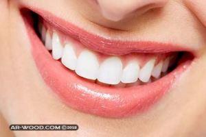 تقويم اسنان للفك العلوي فقط