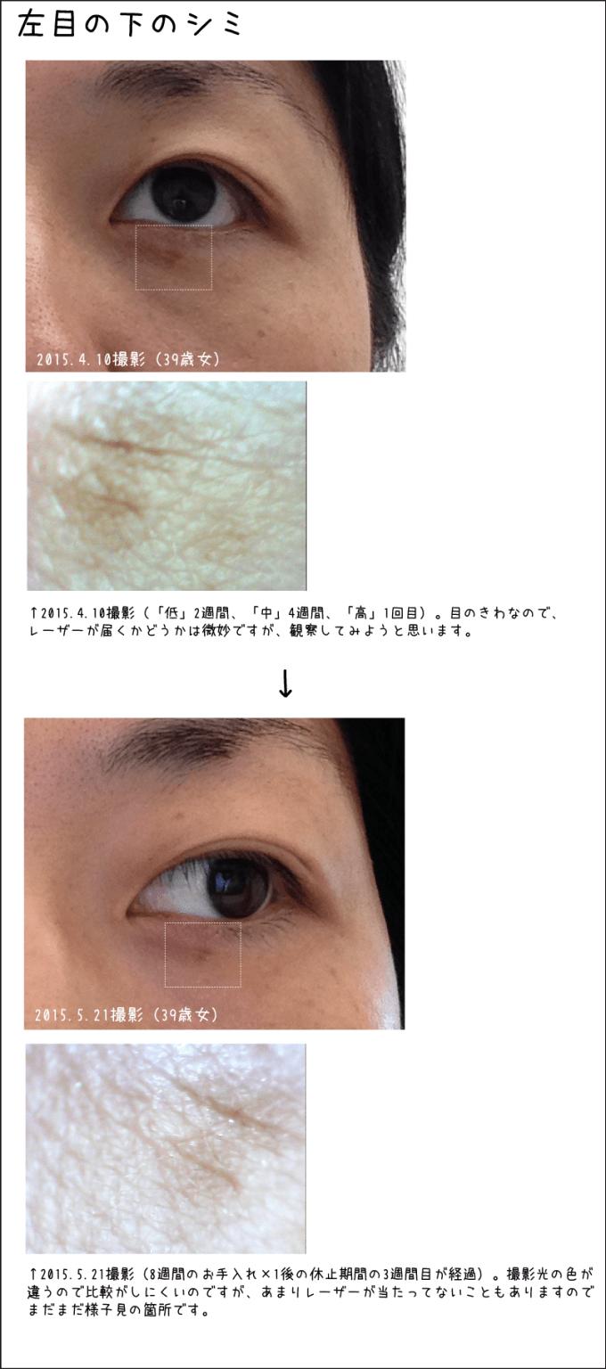 左目の下のシミ。2015.5.21撮影(8週間のお手入れ×1後の休止期間の3週間目が経過)。撮影光の色が違うので比較がしにくいのですが、あまりレーザーが当たってないこともありますのでまだまだ様子見の箇所です。