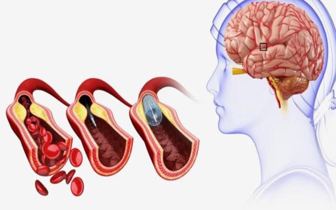 من هم الأكثر عرضة للسكتة الدماغية؟