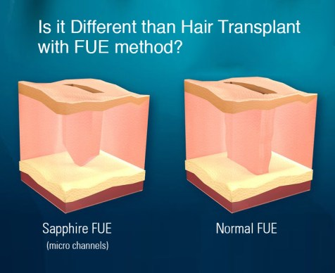 sapphire-fue-hair-transplant-cosmedica-clinic-Arabist Group