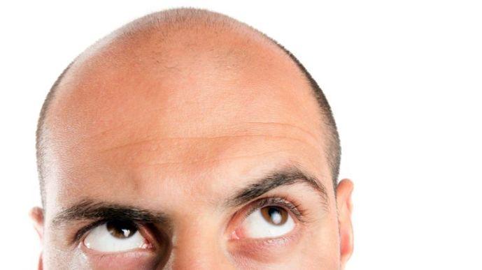 تساقط الشعر - أرابيست جروب