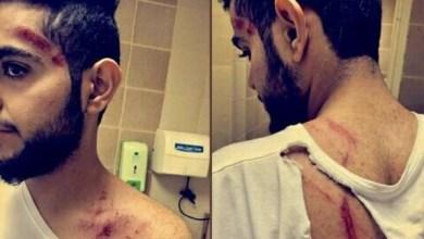 Photo of السعودية.. لبؤة تهاجم شاباً وكادت تقتله بالباحة