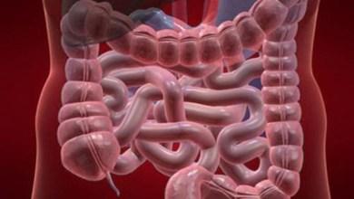 "Photo of نظام غذائي ""ملون"" يكافح سرطان القولون"