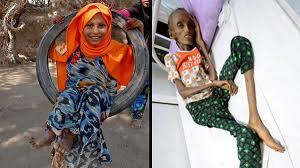 Photo of بالصور.. قصة هذه الفتاة اليمنية التي هزت ضمير العالم