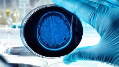Photo of المرض المدمر.. العلماء يحددون العلامة المبكرة لاحتمال الإصابة