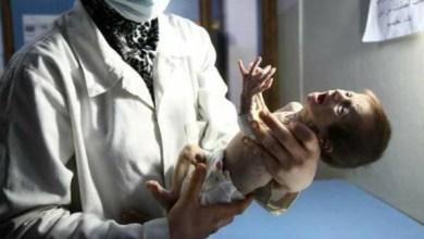 Photo of صور مؤلمة لرضيعة سورية.. طفلة الغوطة جثة هامدة