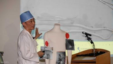 Photo of بالصور.. أمعاء جندي منشق تكشف أسرار كوريا الشمالية