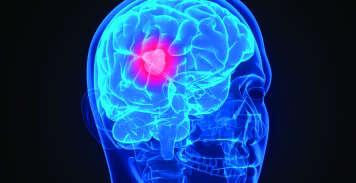 Photo of صدمة كهربائية خفيفة للدماغ تجعلنا نرى الناس أكثر جمالاً