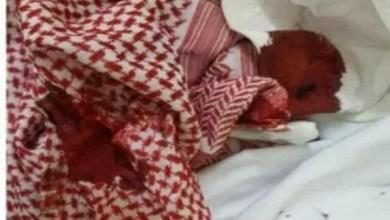 Photo of السعودية.. تعليم المدينة يحقق في ضرب طالب لمعلم بحجر