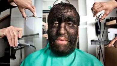 """Photo of كيف يعيش الرجل """"الأكثر شعرا"""" في العالم؟"""