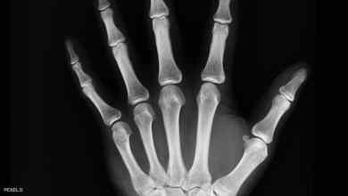 Photo of 7 نصائح.. كيف تحمي عظامك مع تقدمك في العمر