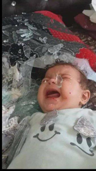 إصابة أطفال نتيجة العدوان الإسرائيلي على قطاع غزة