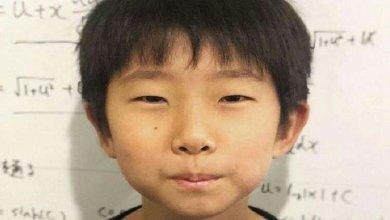 Photo of الحصبة تنتشر بسرعة في اليابان