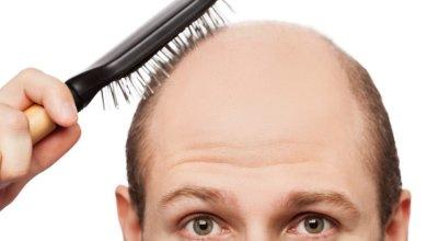Photo of شركة تركية تطور علاجًا للصلع يُغني عن زراعة الشعر