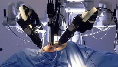 "Photo of أول عملية قلب بالروبوت ""عن بُعد"""