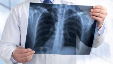 Photo of مرض غامض في الرئة يصيب 1080 شخصًا في 48 ولاية أمريكية
