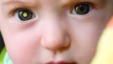 Photo of تطبيق جديد لكشف العلامات المبكرة لسرطان العين بين الأطفال