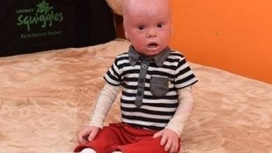 Photo of حالة نادرة لطفل بريطاني تجعله يشبه الدمى.. تعرف عليها