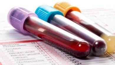 Photo of ما هي فصيلة الدم التي يفضلها فيروس كورونا؟
