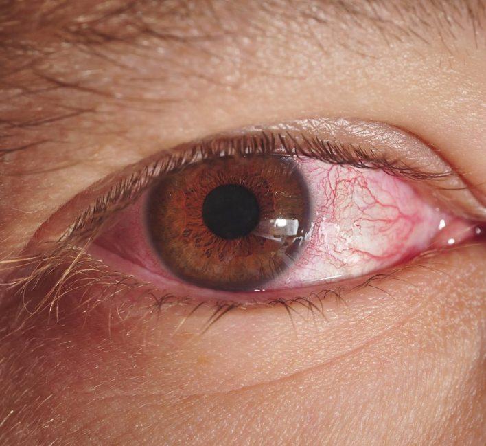 احمرار العين